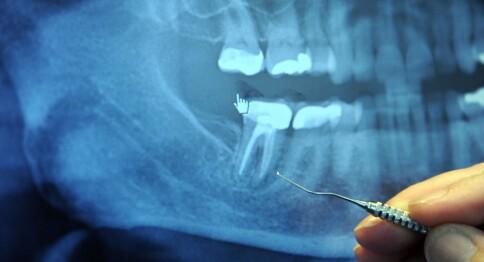 Stor forskjell på tilbudet for studenter som har tannverk