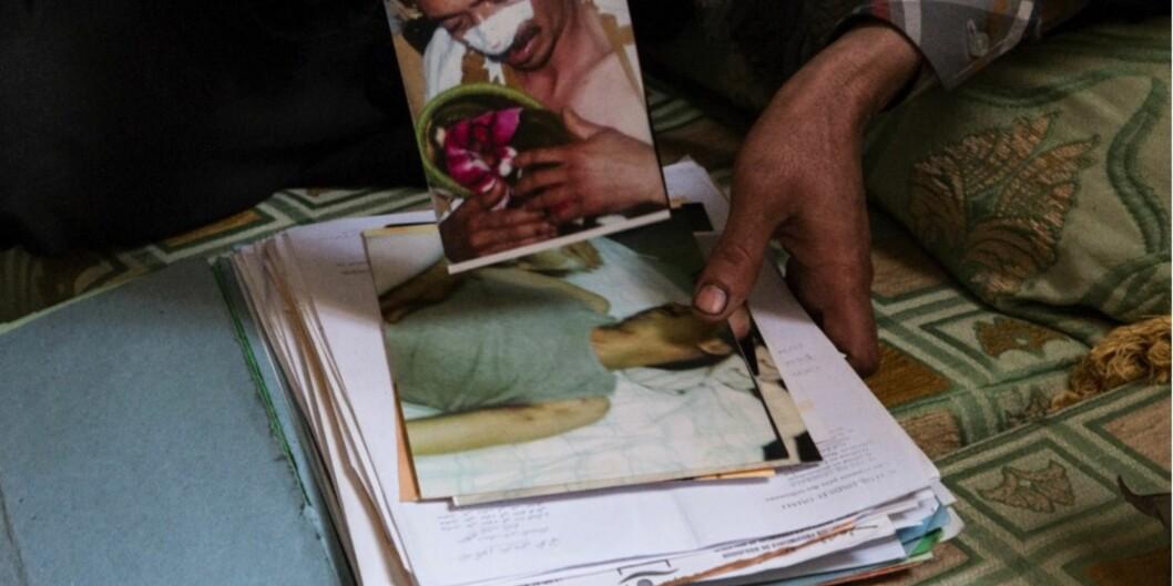 """I dag offentliggjør <span class=""""caps"""">SAIH</span> en ny rapport som viser at bare det siste året skal 55 saharawier, blant dem syv barn, ha blitt utsatt for tortur. Ett av ofrene, Ibrahim (31) ser de som gjorde det på gaten, vet hva de heter, men kan ikke rapportere volden til noen. Foto: Thea WillochNjaastad"""
