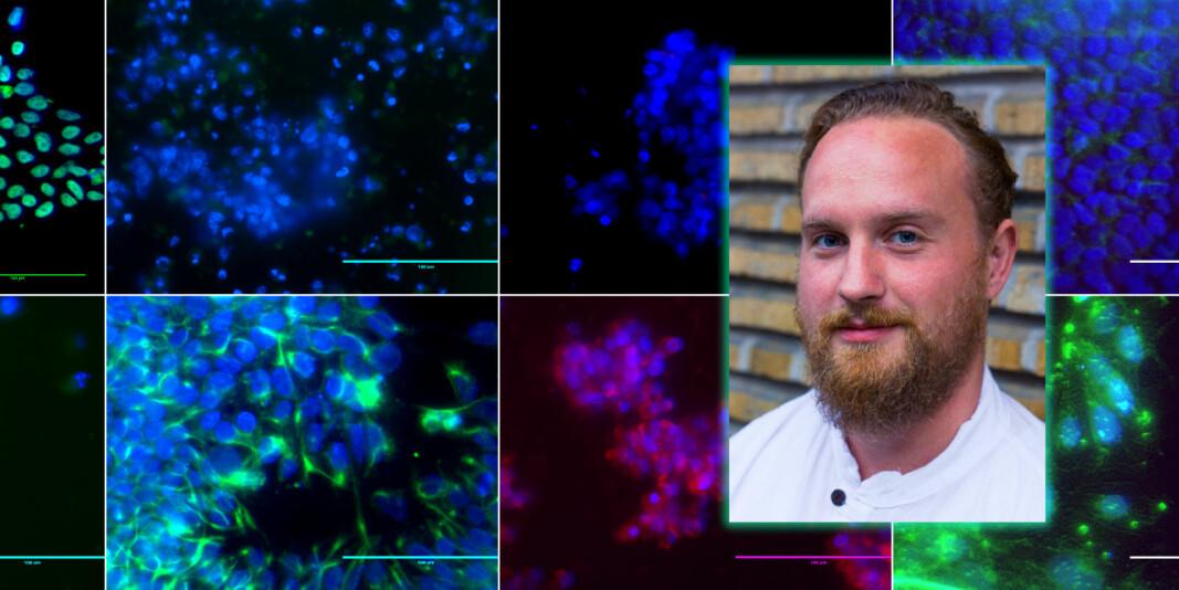 Ulike typer hjernestamceller fotografert av Falck selv.