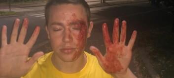 OsloMet-student fekk bank fordi han er homofil