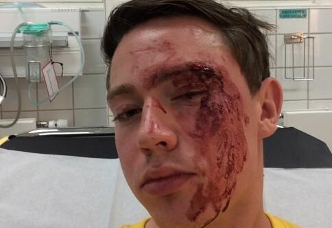 Mann (28) sikta for å ha skalla ned OsloMet-student